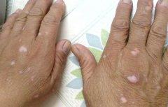 肢端型白癜风怎样护理?
